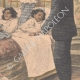 DETAILS 04 | Separation of two siamese girls - France - 1902