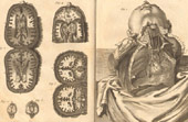 Médecine - Anatomie - 1779 - Cerveau - Artères de la Poitrine - Poumons