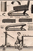 Médecine - Chirurgie - 1779 - Machine pour les Fractures