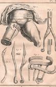 Médecine - Chirurgie - 1779 - Instruments pour l'Amputation