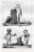 Gravure ancienne - Buffon - Histoire Naturelle - Variétés dans l'espèce humaine - Anomalie - Couleur de la peau humaine