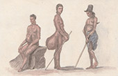 Marianerna - Ursprungsbefolkning - Lepra - Elefantiasis (USA)