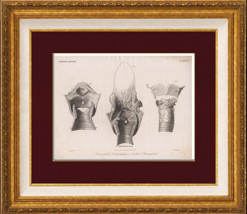 Grabados Antiguos | Anatomía - Patología - Otorrinolaringología ...